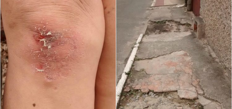 Mulher cai em calçada irregular e machuca os dois joelhos