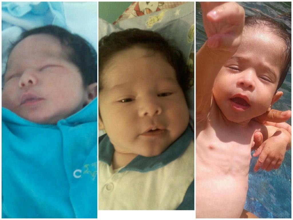 Thiago ao nascer, aos três meses e atualmente. Ele não consegue passar dos 4 kg.