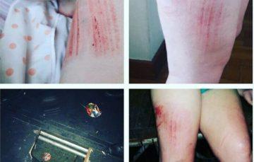 Psicóloga fica ferida depois do chão de camarote ceder em show em Guarapari