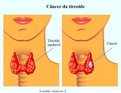 Câncer-de-tireoide-400x309