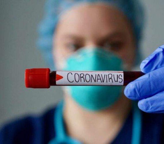 Coronavírus: municípios de Guarapari, Anchieta e Alfredo Chaves seguem sem nenhum caso confirmado
