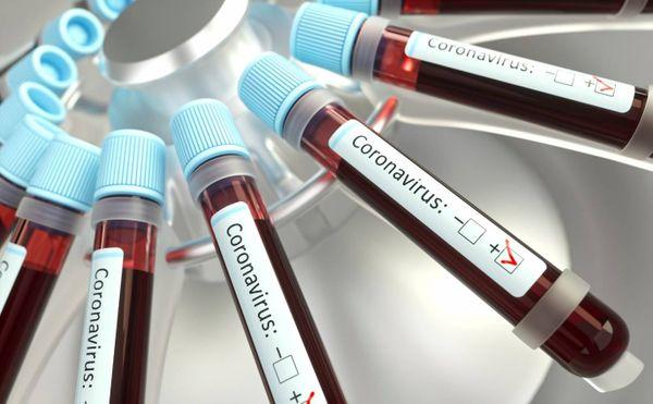 ES amplia critérios de testagens para o novo Coronavírus